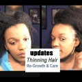My-Natural-Hair-Is-Growing-Back-After-The-Thinning-Tips-Treatment-For-Hair-Growth-In-Women