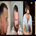 35-Reserved-Hairstyles-for-Balding-Men-2017-Never-Restrict-on-The-Styles