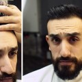 The-Best-Haircut-and-Style-For-Thinning-Hair